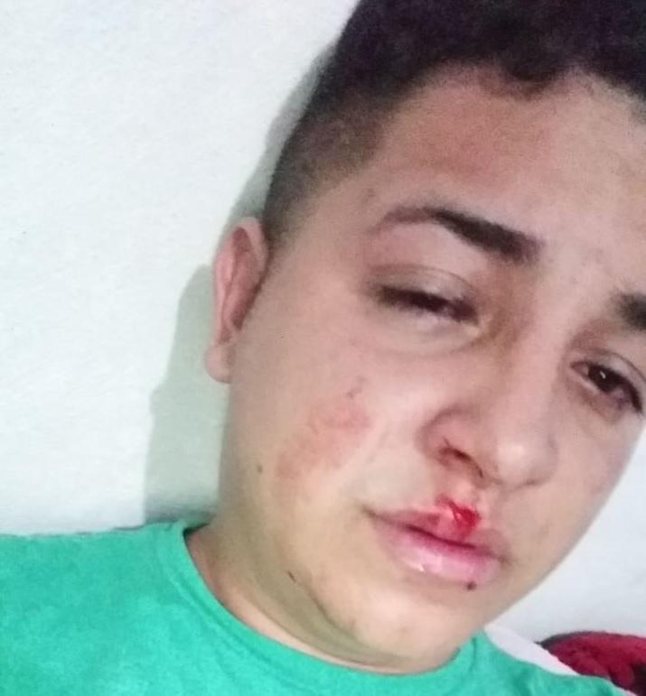 Leonardo Gama após ser agredido perto de casa em Jaibara dos Nogueiras